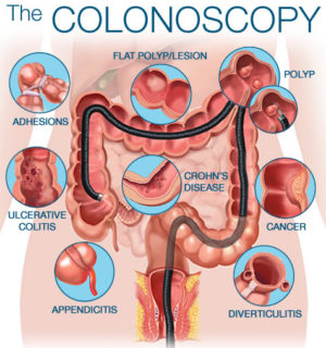 endoscopy and colonoscopy