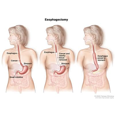 Esophagectomy for cancer