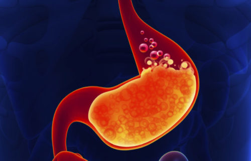 Upper Gastro Intestinal Surgery for heartburn and gord