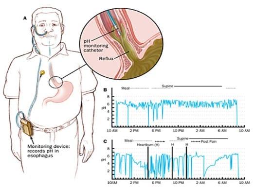 oesophageal ph study