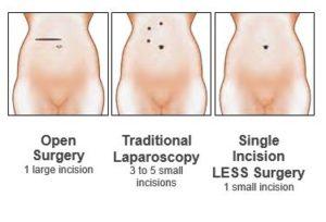 Types of gallbladder surgery