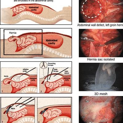 hernia treatment