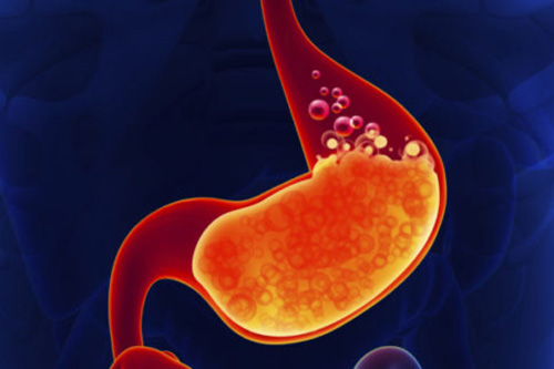 heartburn treated with gastro surgery